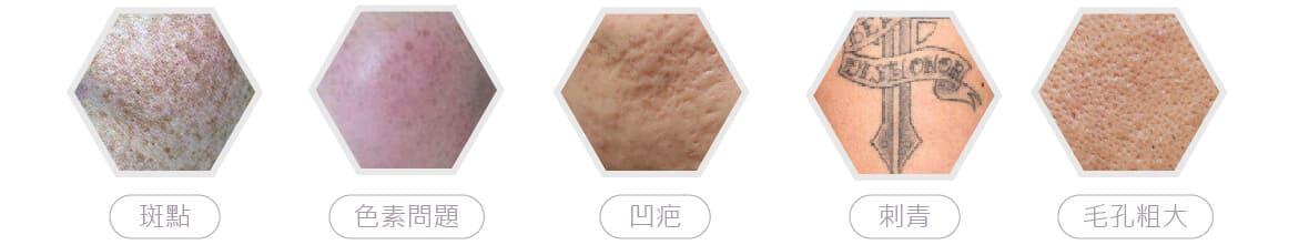 4D皮秒雷射可改善的肌膚問題
