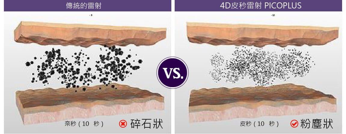4D皮秒雷射與傳統雷射差異