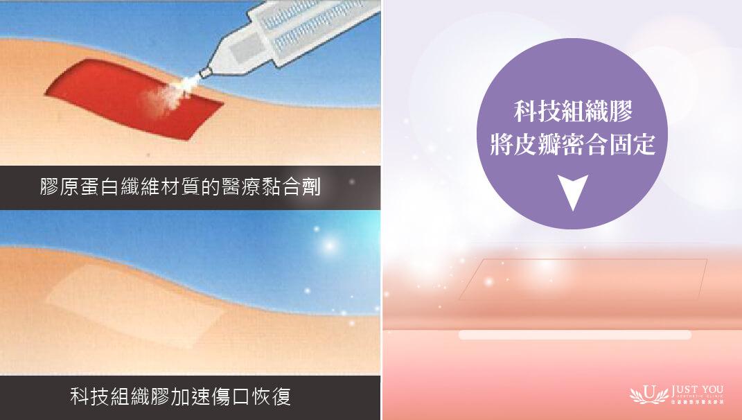 特色4-使用科技组织胶加速伤口恢复