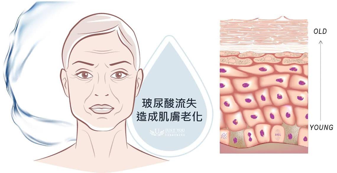 玻尿酸流失造成肌肤老化