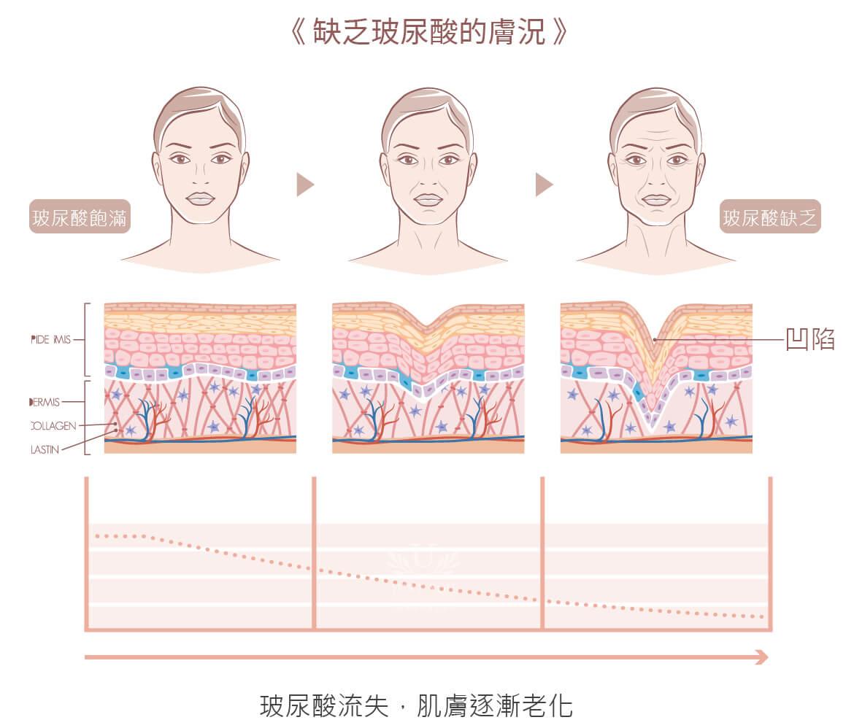 檢測玻尿酸流失.肌膚老化程度