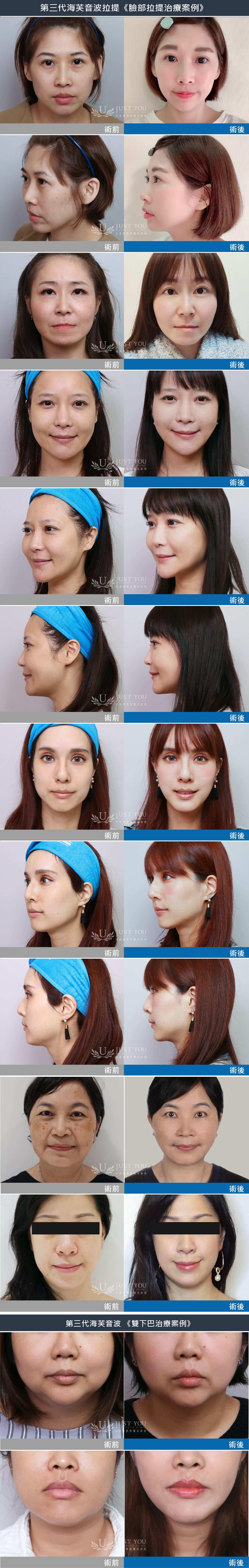 第三代海芙音波拉臉部治療範圍
