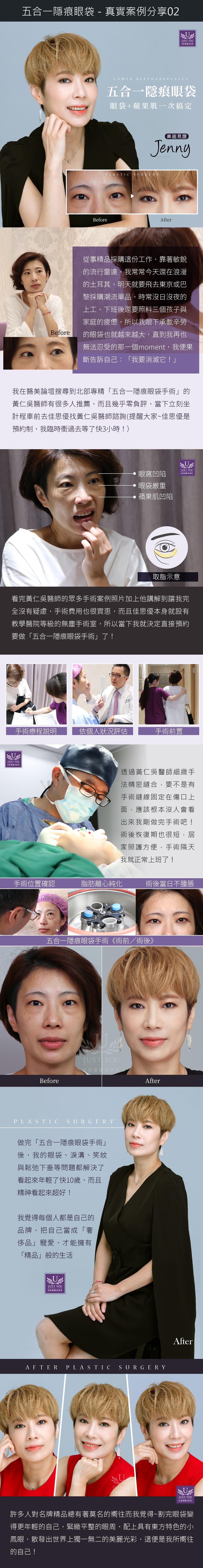 佳思优-眼袋手术实际案例分享