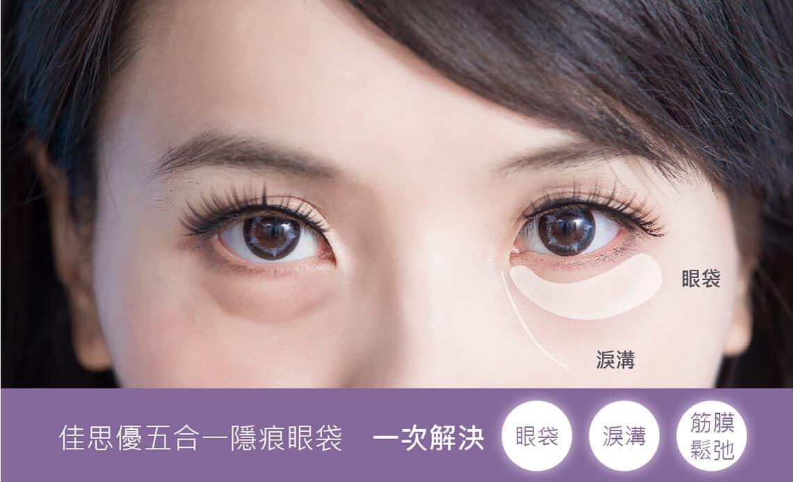 佳思优五合一隐痕眼袋手术一次消除泪沟,眼袋,筋膜松弛