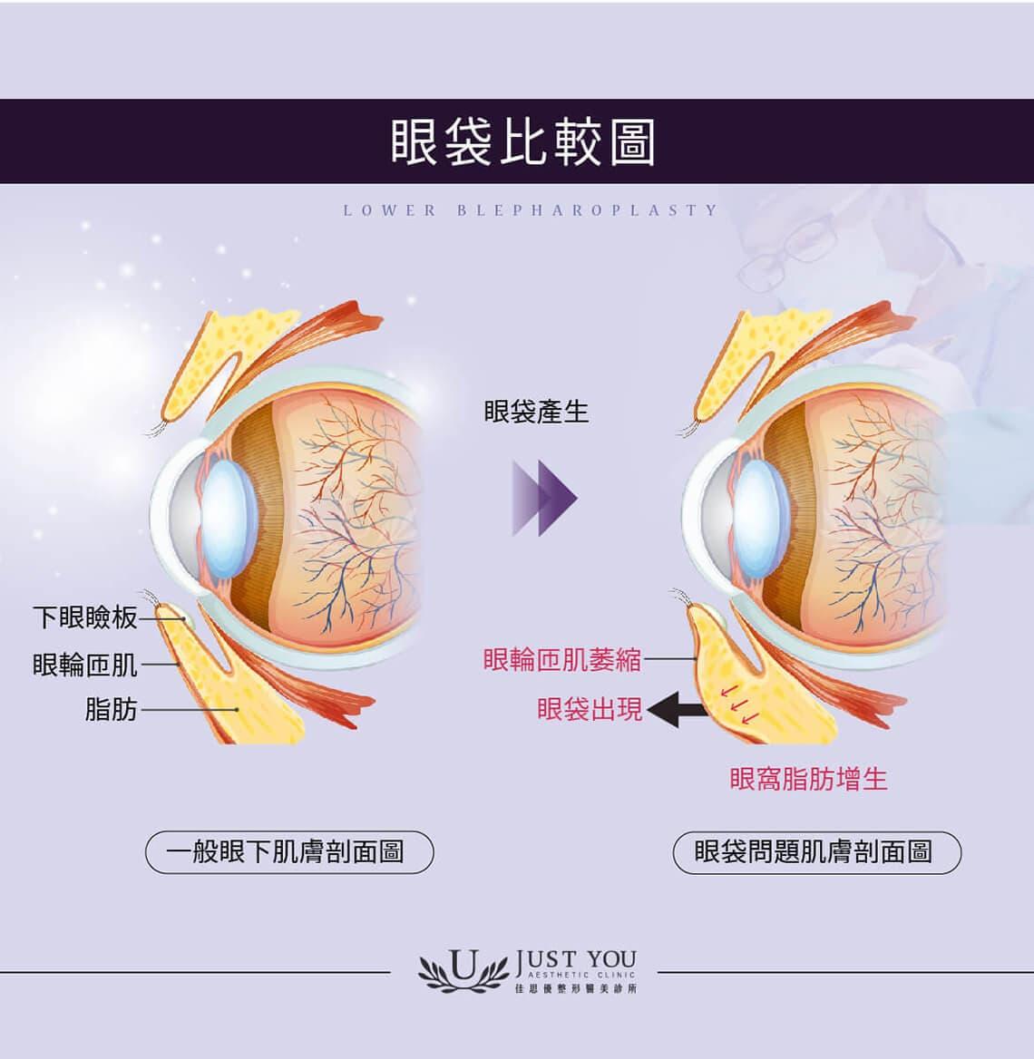 眼袋的形成