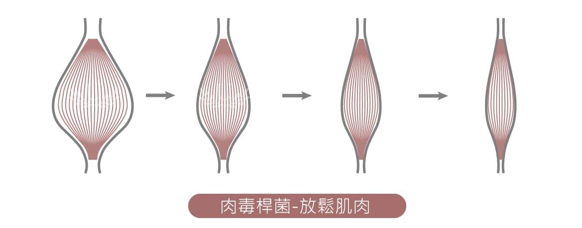 肉毒桿菌-放鬆肌肉