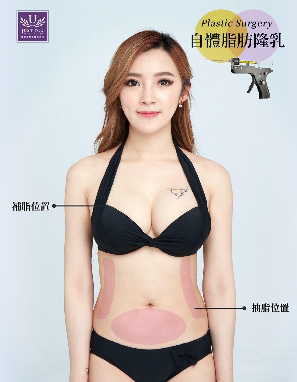 自體脂肪隆乳抽脂補脂位置