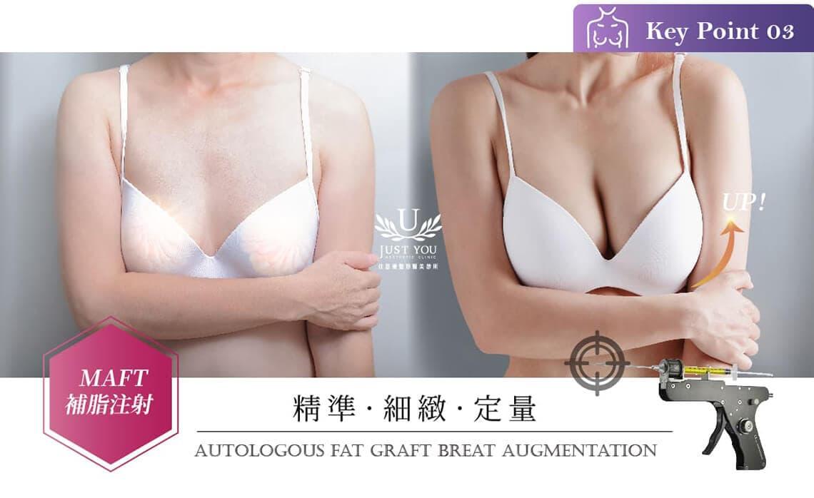 自體脂肪隆乳MAFT補脂槍治療前後
