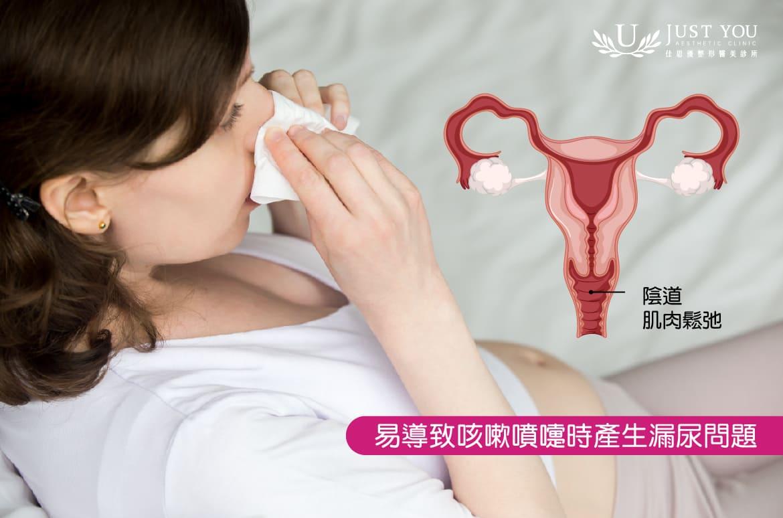 陰道鬆弛易導致咳嗽時產生漏尿問題