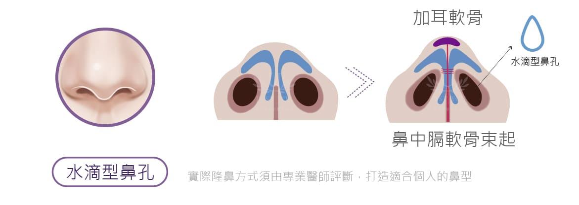 隆鼻手術水滴型鼻孔