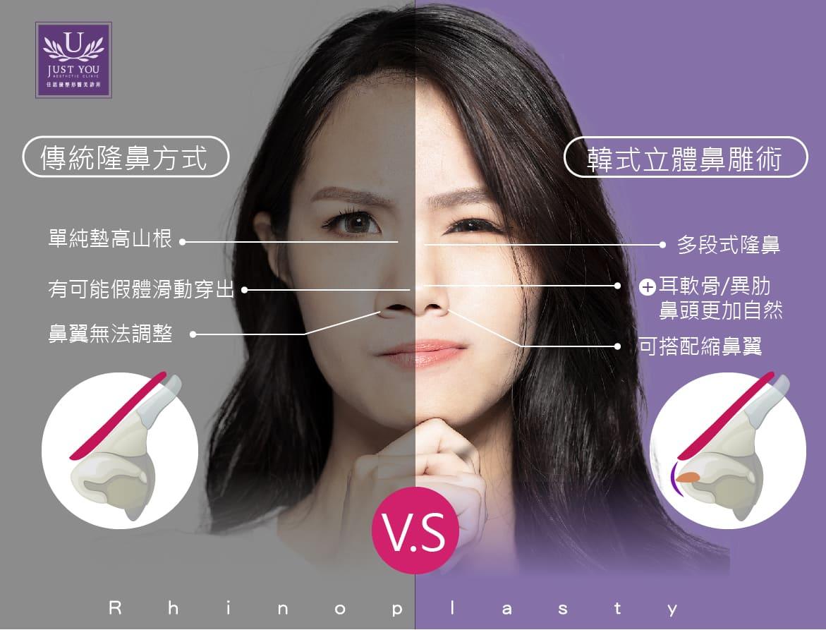 隆鼻手術比較