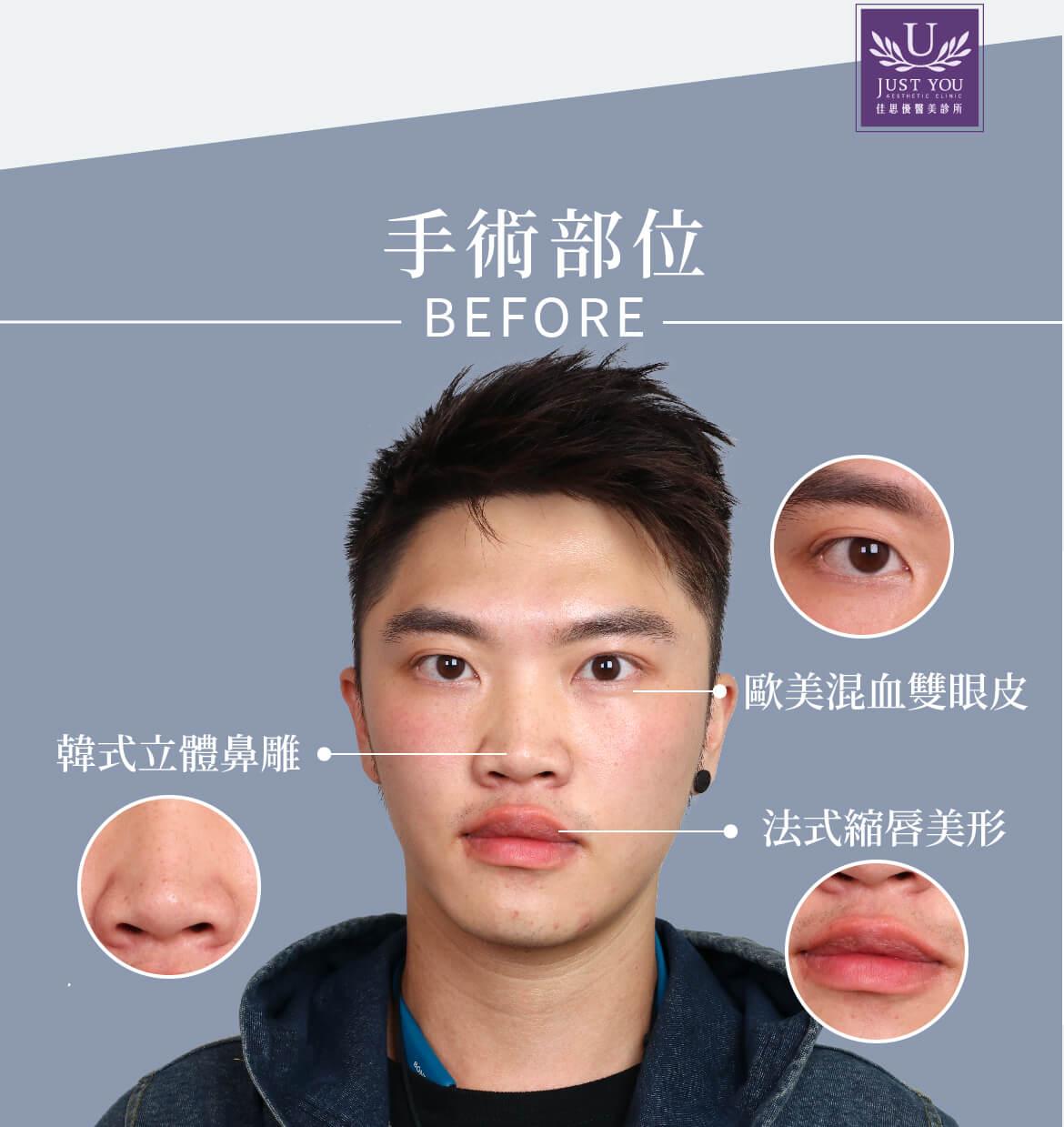 隆鼻手術部位