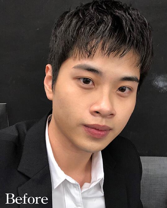 藝人-謝耀東隆鼻手術術前