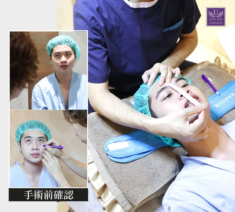 藝人-謝耀東隆鼻手術諮詢