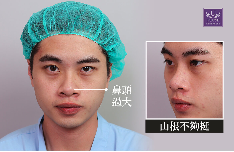 藝人-謝耀東隆鼻手術前照片