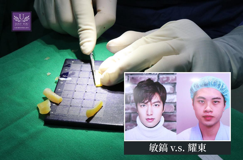 藝人-謝耀東隆鼻手術過程