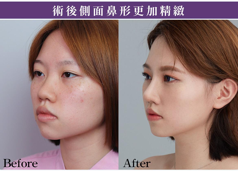 韓式立體隆鼻雕塑,真實案例術前術後照