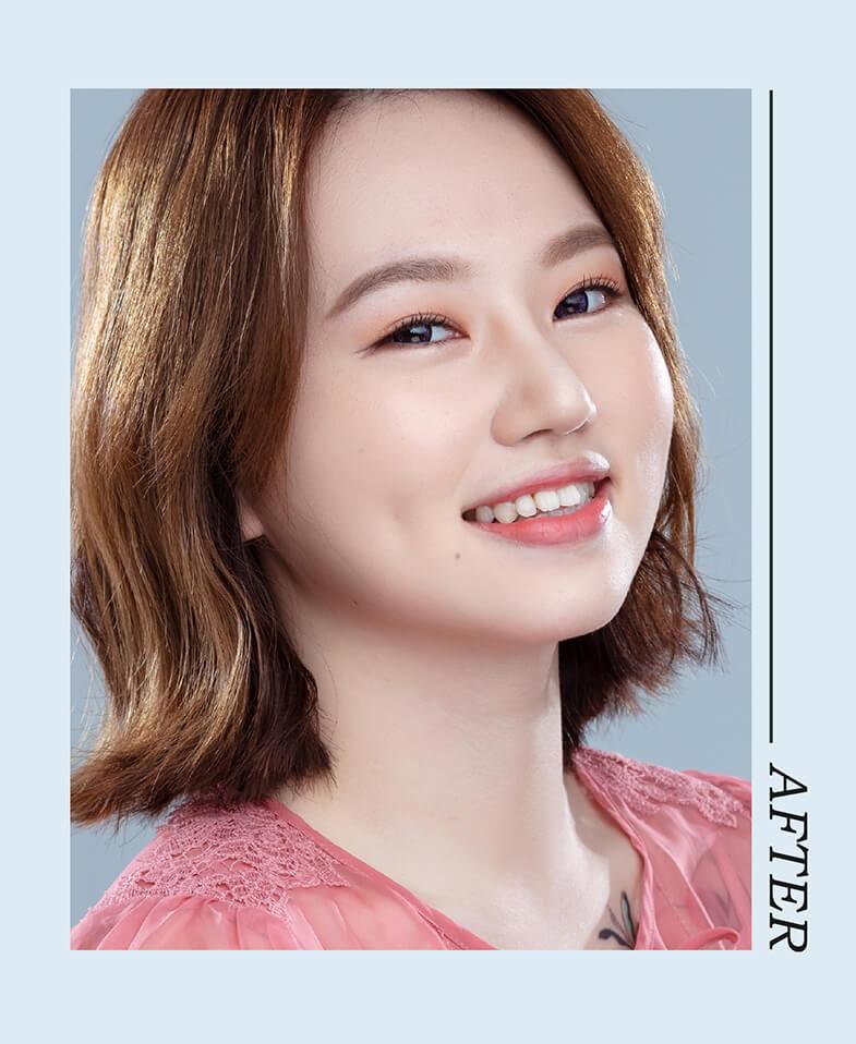 韓式立體隆鼻雕塑術後