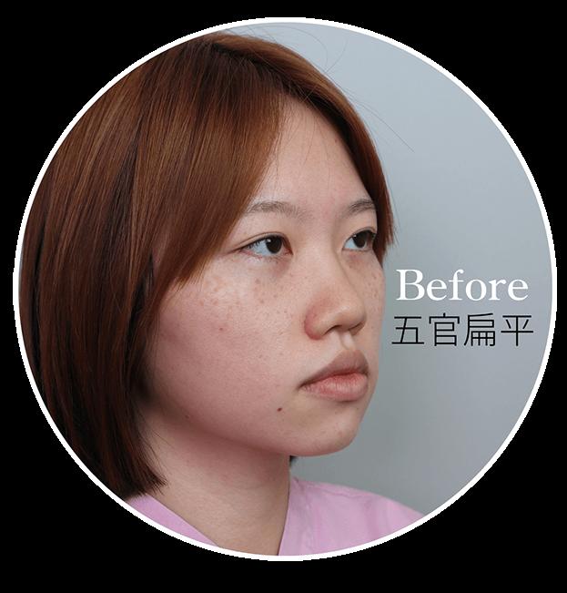 韓式立體隆鼻雕塑真實見證術前