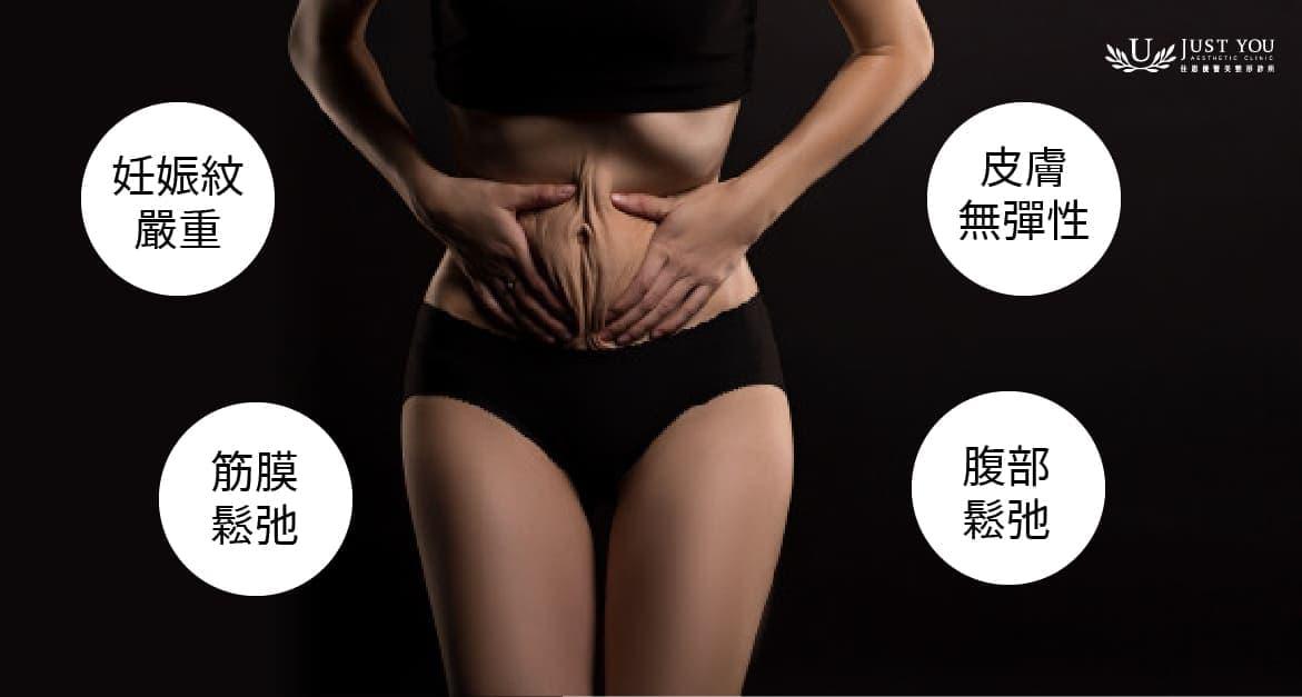 腹部拉皮可改善的問題