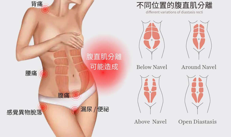 腹部拉皮,若腹直肌分离可能会出现消化不良、下背痛、骨盆肌肉酸痛、漏尿、便秘