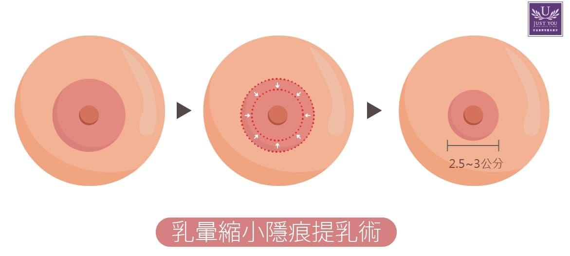 乳晕缩小隐痕提乳术