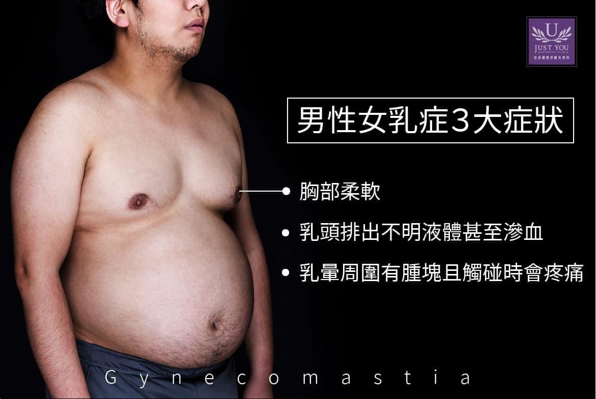 什麼是男性女乳症(Gynecomastia)