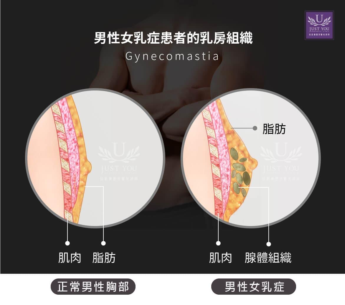 男性女乳症的乳房組織