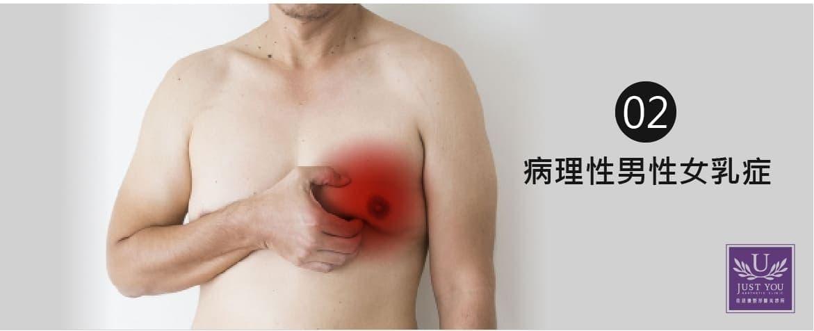 病理性男性女乳症