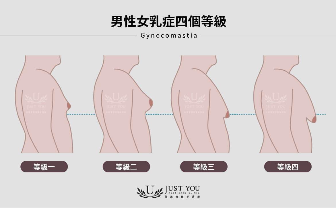 男性女乳症四個等級