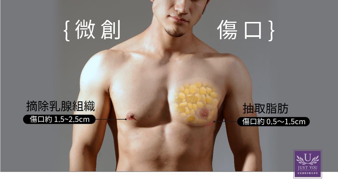 男性女乳症的手術治療方式