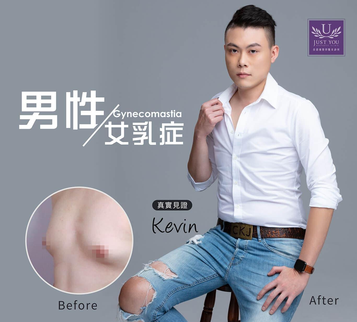 男性女乳症微創平胸手術-真實案例