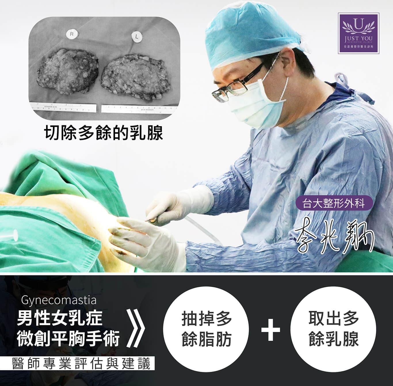 男性女乳症微創平胸手術過程
