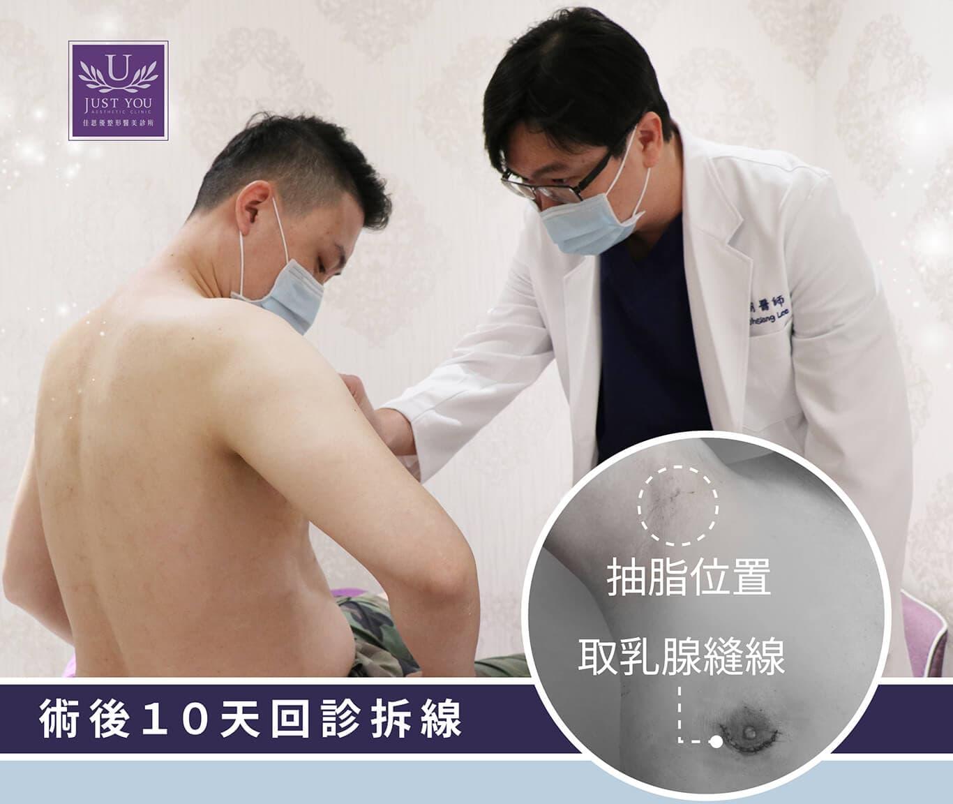 男性女乳症微創平胸手術回診