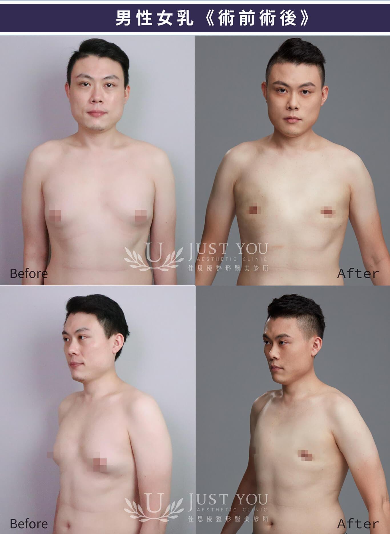 男性女乳症微創平胸手術,術後比對照