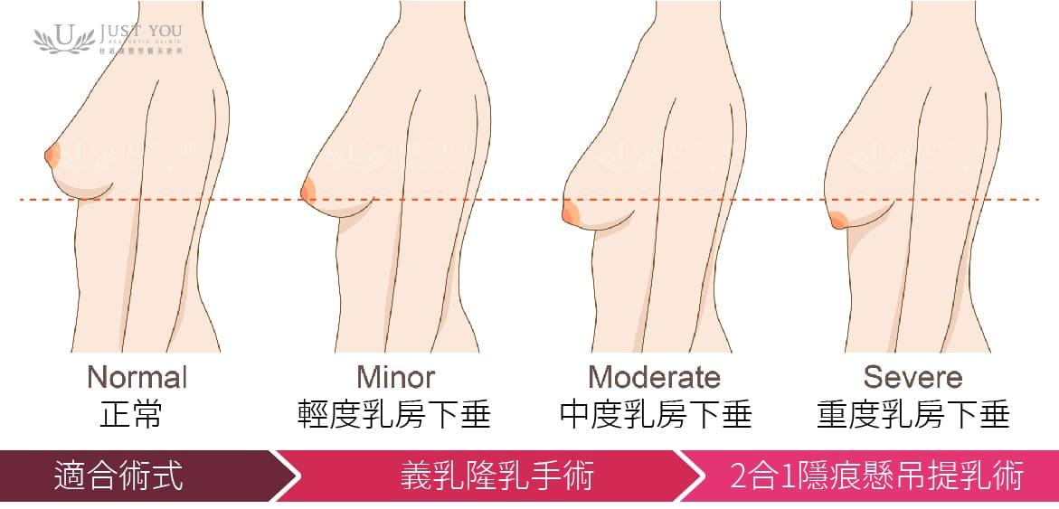 乳房下垂程度對應的提乳手術方式