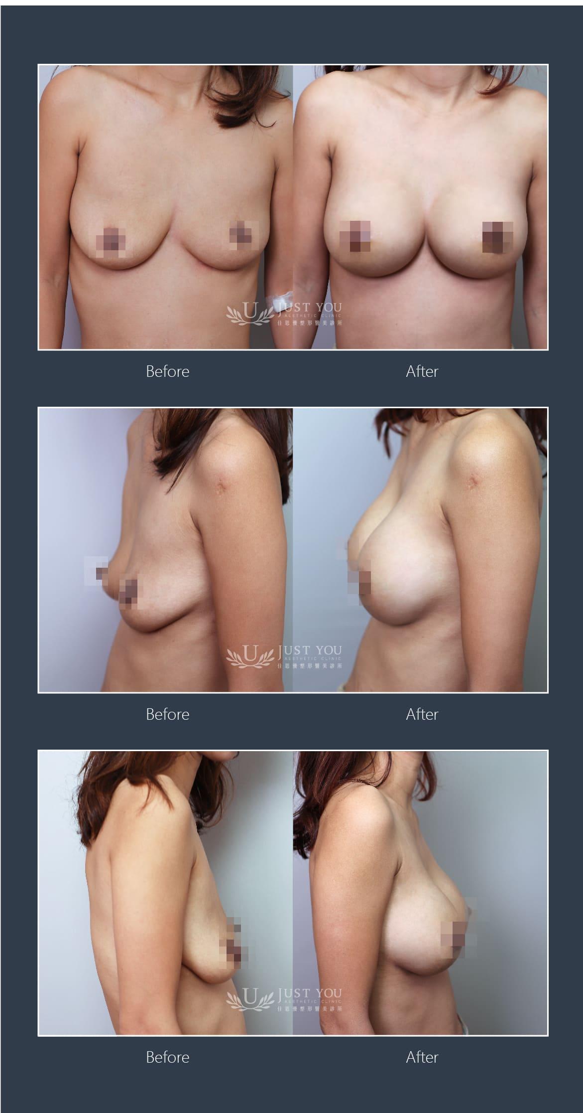 2合1隱痕懸吊提乳術實際案例
