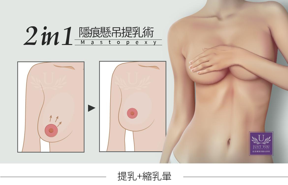 2合1隱痕懸吊提乳術,提乳+縮乳暈