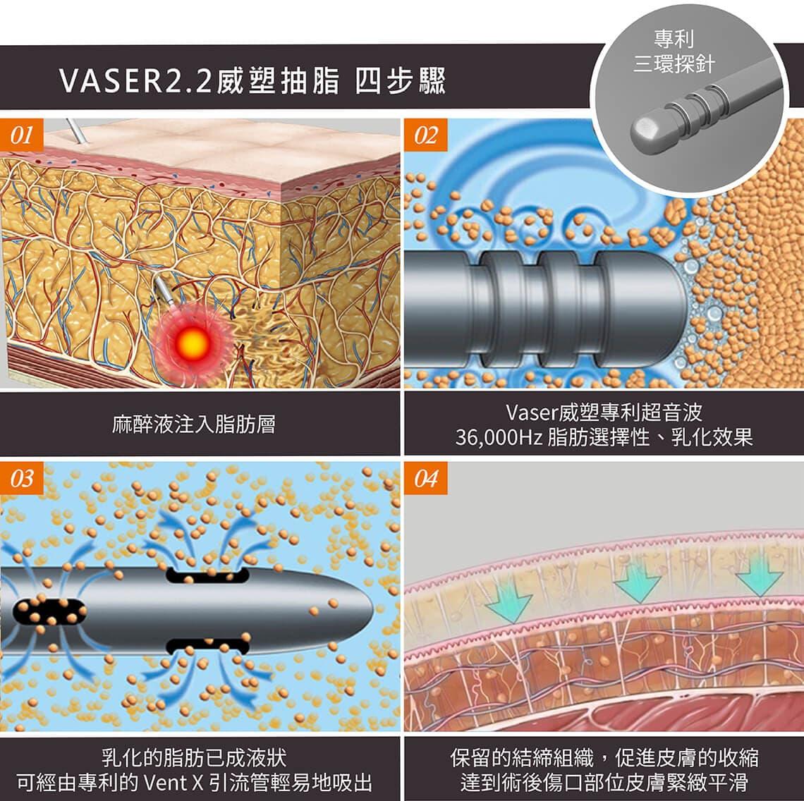 VASER2.2 二代威塑抽脂四步驟