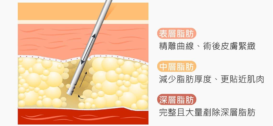 VASER2.2 二代威塑抽脂手術,擺脫傳統限制