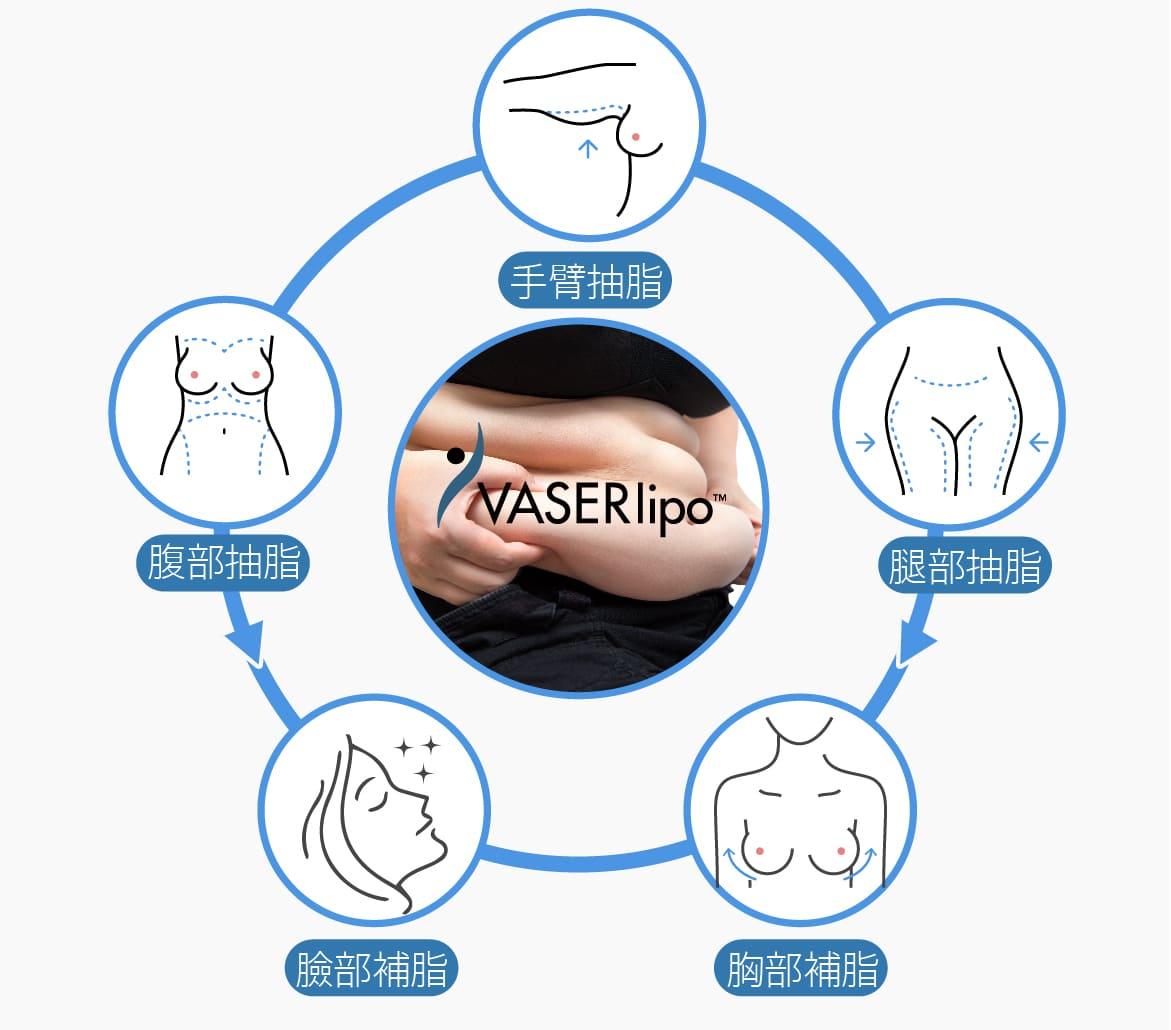 VASER2.2 二代威塑可再自體脂肪補臉/補胸