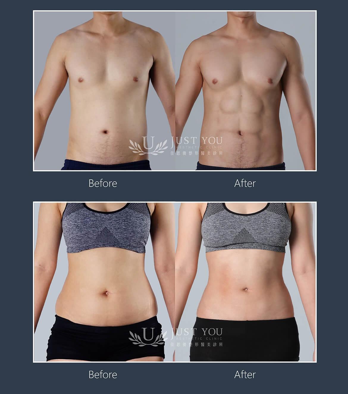 VASER 2.2 二代威塑抽脂胸肌、腹肌雕塑案例