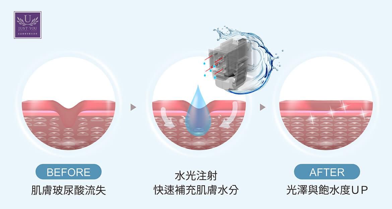 為什麼肌膚需要注射水光針/水光槍補充水分