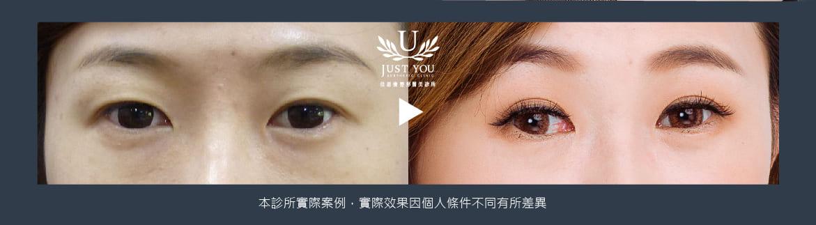 雙眼皮案例4術前術後