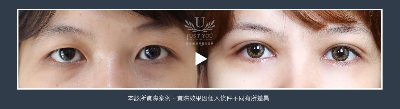 歐美混血雙眼皮術前術後比對
