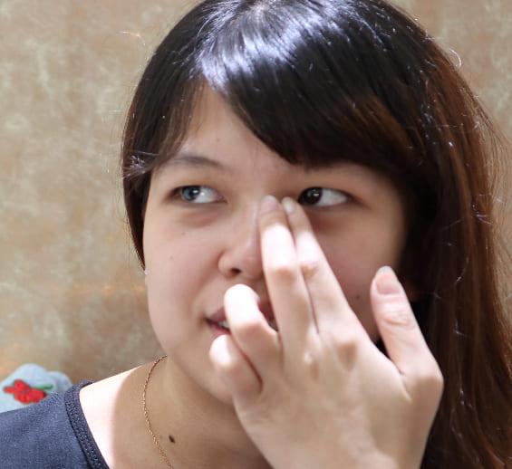 歐美混血雙眼皮術前諮詢