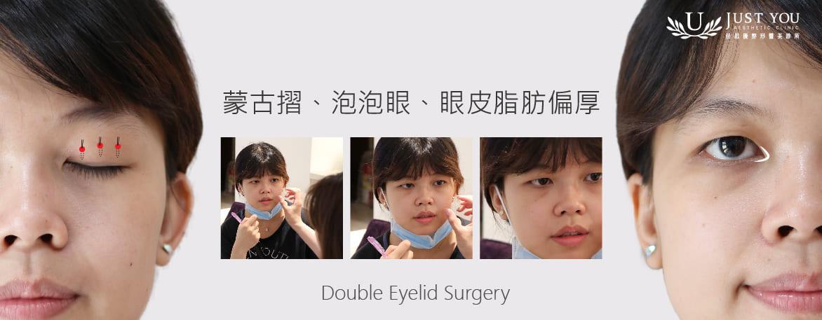 歐美混血雙眼皮療程規劃