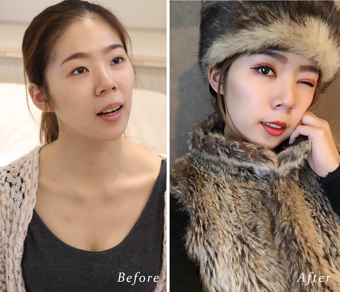 雙眼皮手術術前術後比對