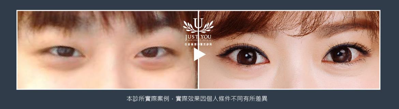 雙眼皮案例3術前術後