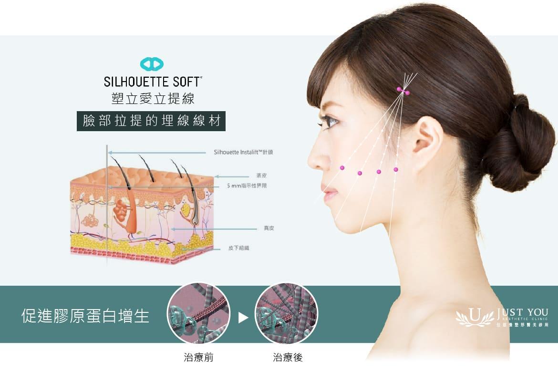 埋線拉皮後,可促進膠原蛋白增生,填補體積並重塑臉部形狀,達到立體性的拉提效果